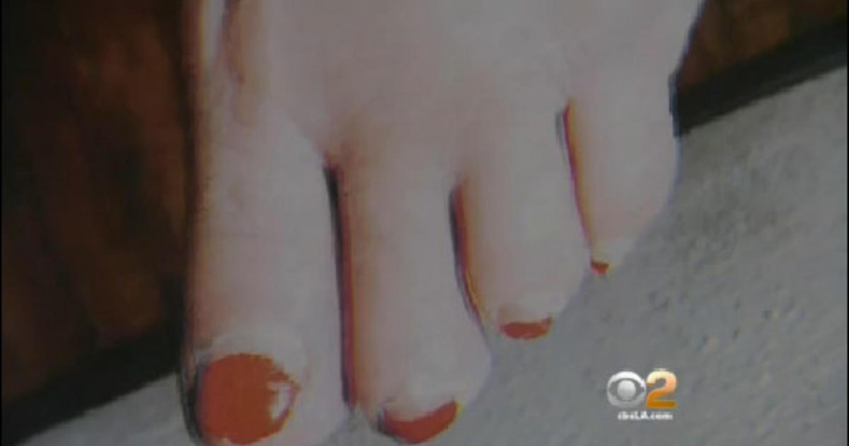 Woman gets pedicure, loses toe, sues nail salon - CBS News