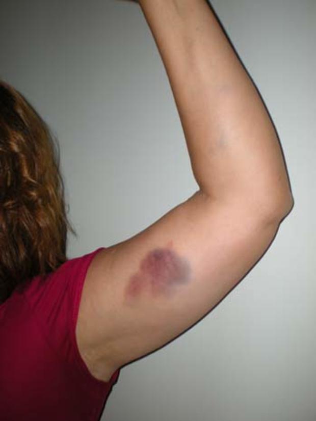 Jane Laut bruise on arm