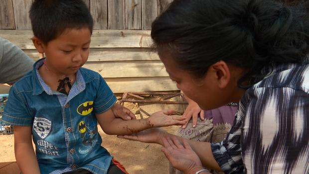 U.S. cluster bombs still killing in Laos