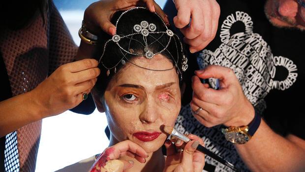 Acid attack survivor takes on NY Fashion Week