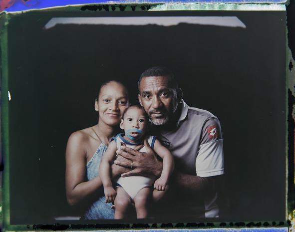 Portraits of Zika babies