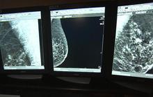 Metastatic breast cancer treatments in development
