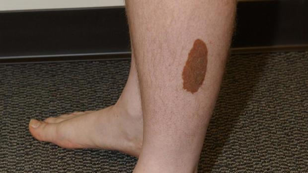 birthmark.jpg