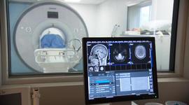 Drug trials to prevent Alzheimer's