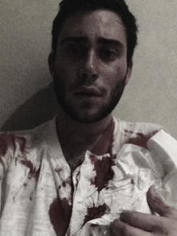 nolan-bloody-selfie-220.jpg