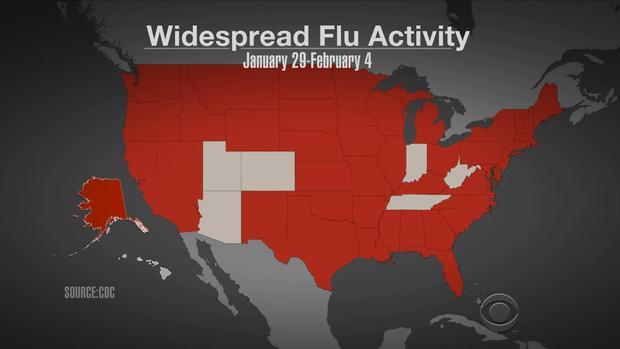 lapook-flu-activity-2017-2-10.jpg