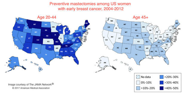 mastectomy-maps.jpg