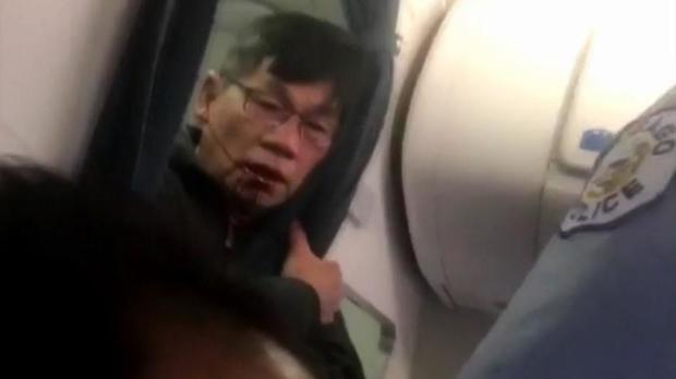 170411-facebook-united-passenger-bloody-face.jpg