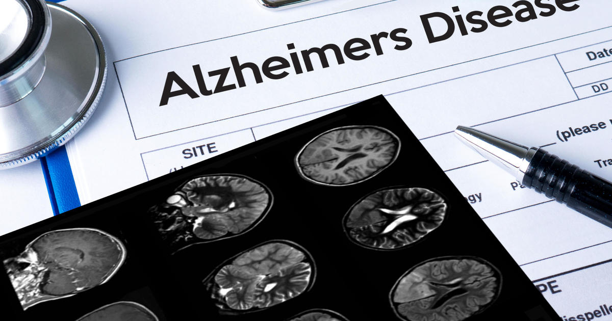Rare genetic mutation might hold clues to preventing Alzheimer's