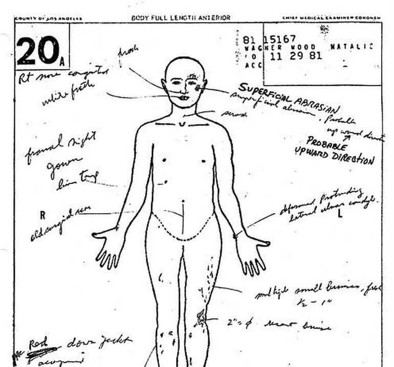 Natalie Wood autopsy report