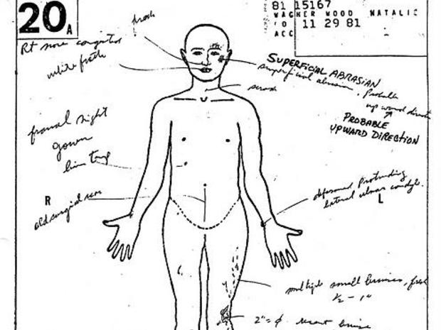 natalie-wood-autopsy-hero.jpg