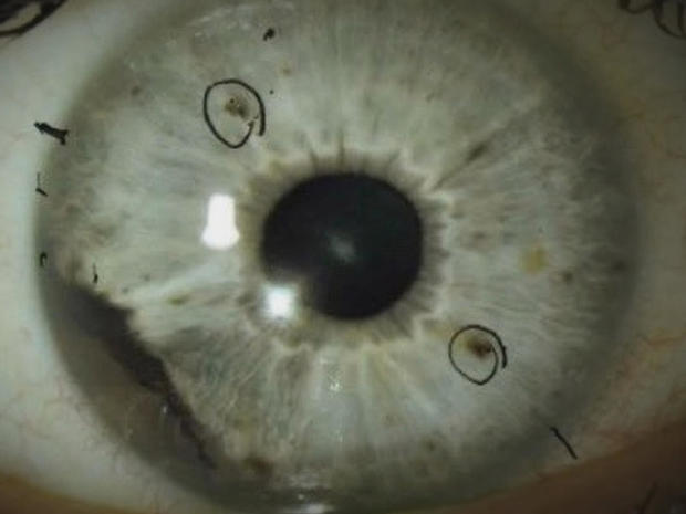 ocular-melanoma-eye-cancer-promo.jpg