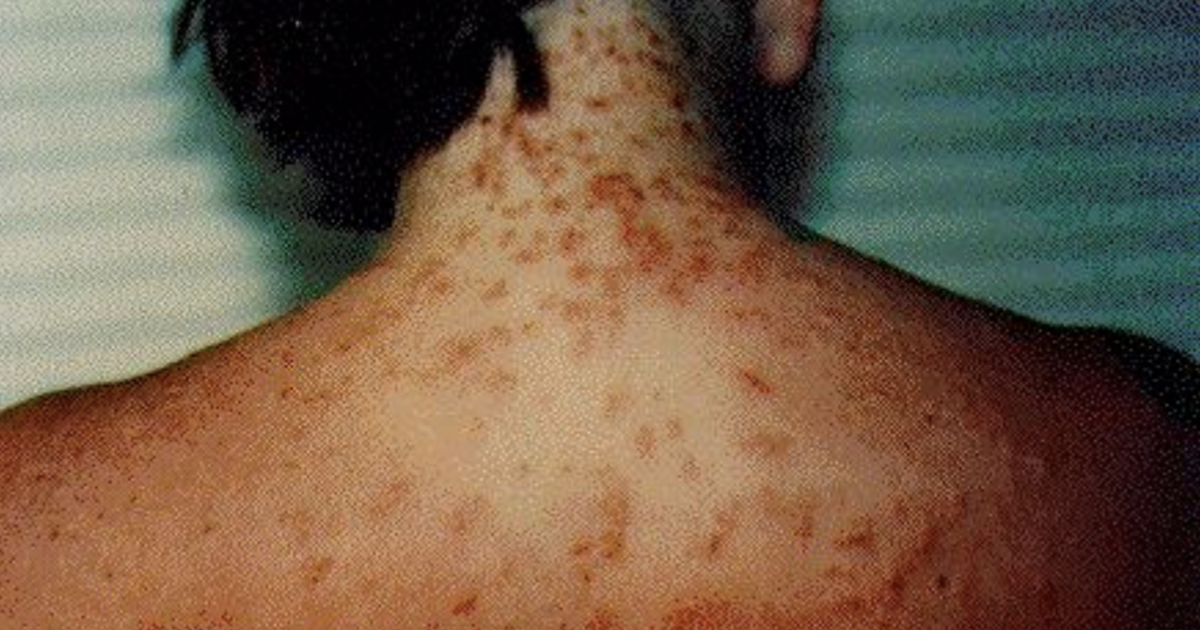 Sea lice reported on Pensacola Beach in Florida - CBS News