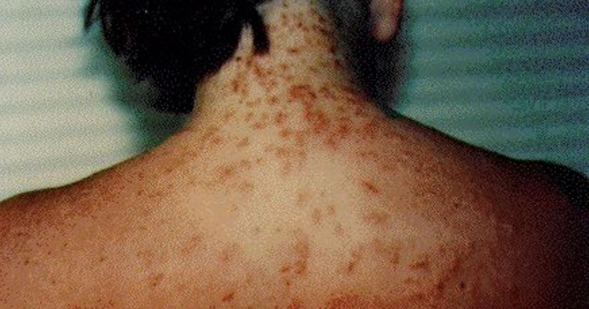 Sea Lice Reported On Pensacola Beach In Florida Cbs News