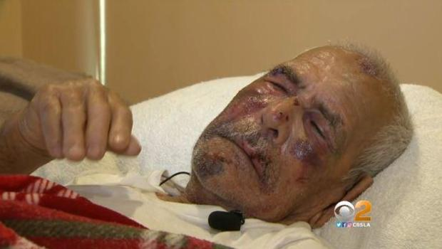 L.A. elderly man who was brutally beaten with brick thanks witness