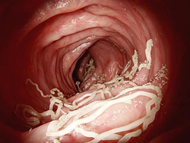 roundworm-2.jpg