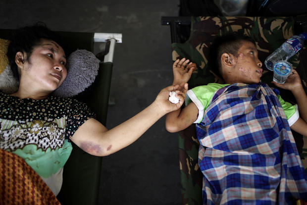 A mother and her son, both injured by the earthquake and tsunami, wait to be airlifted out by a military plane at Mutiara Sis Al Jufri Airport in Palu, Central Sulawesi