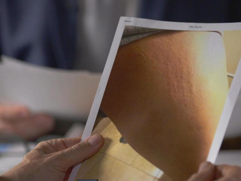 sosa-pvs-bruises.jpg