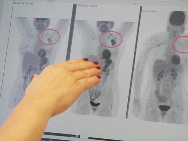 1020-en-breastcancer-lapook-1690518-640x360.jpg