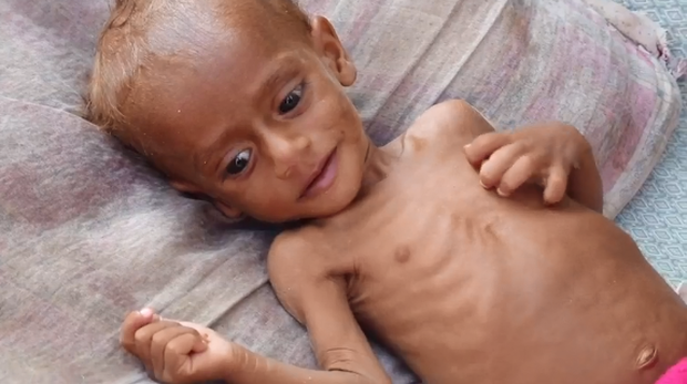 181120-yemen-civil-war-children-malnutrition-03.png