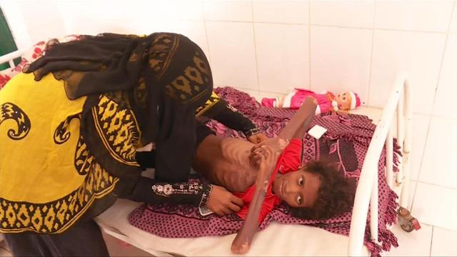 1207-en-yemen-palmer-1729514-640x360.jpg