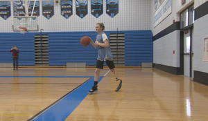 Teen basketball star recovered from having leg amputated from cancer