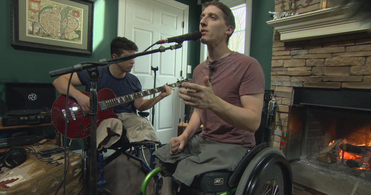 """We just wear our scars on the outside"": Band of wounded warriors healing through music"