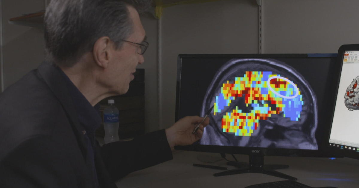 Brain scans show promise in spotting suicidal thoughts