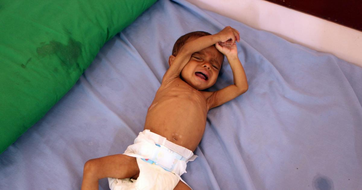 936d9b0fa9 Half of kids in Yemen under five have stunted growth, UN says