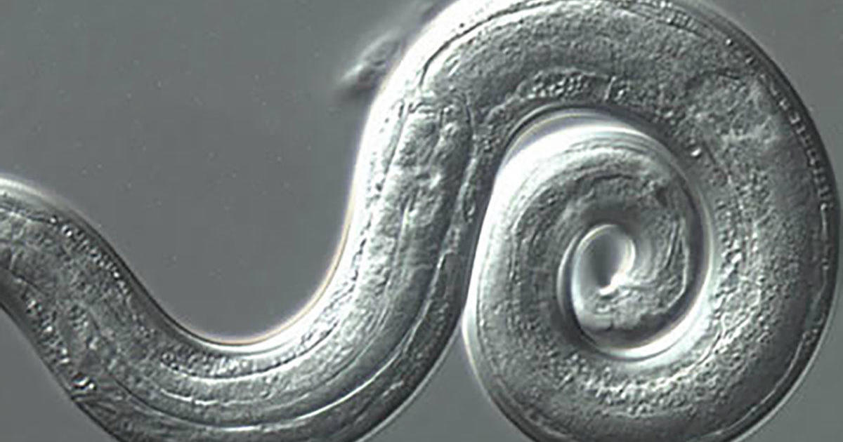 Rat Lungworm Disease: 3 More Cases Confirmed By Hawaii