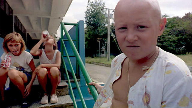 Yura Kudriakse,12,a victim of the 1986 Chernobyl n