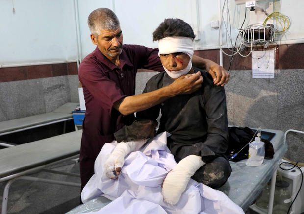An Afghan man receives treatment at a hospital after a bus was hit by a roadside bomb in Herat province