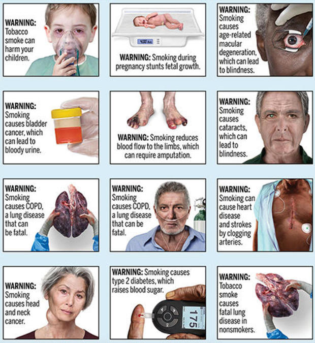 New FDA cigarette labels include realistic images of smoking-related health problems