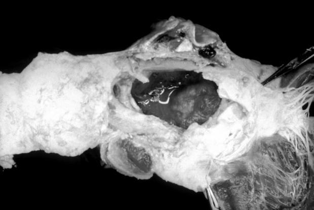 Ruptured Aortic Aneurysm