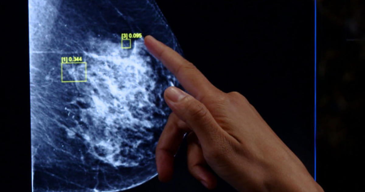 Artificial intelligence program aims to help doctors more accurately diagnose breast cancer