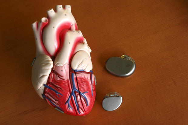 Pacemaker surgery cost