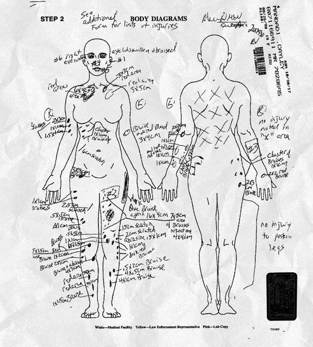 mandadi-autopsy.jpg