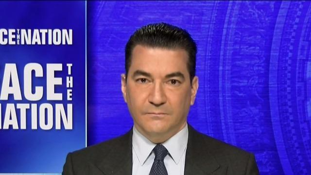 cbsn-fusion-gottlieb-says-biden-administration-should-have-surged-vaccines-to-michigan-weeks-ago-thumbnail-689905-640x360.jpg