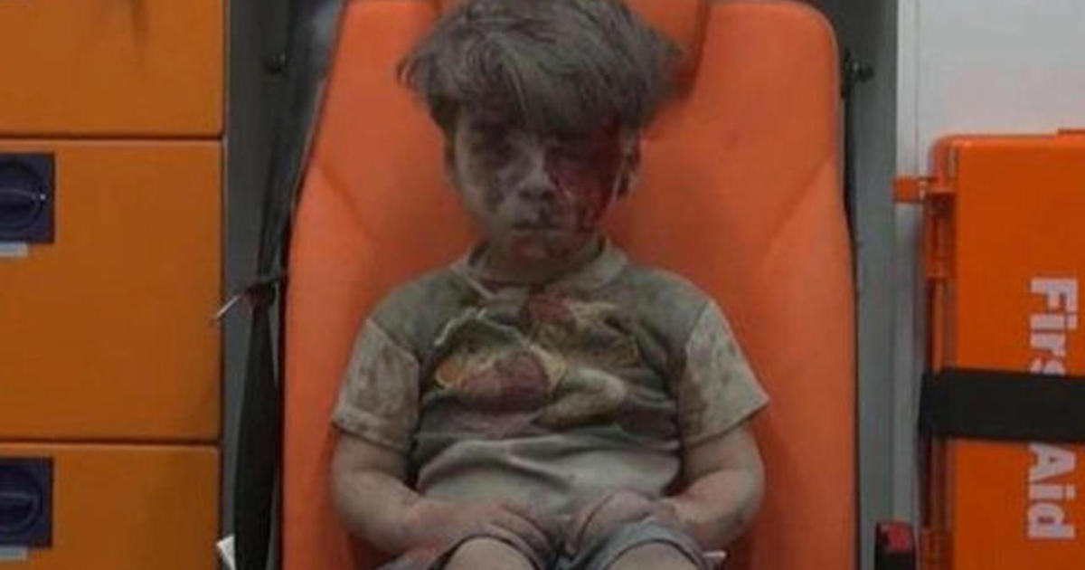 Viral photo become new symbol of Syrian War