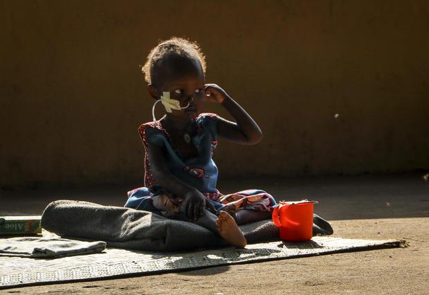 South Sudan Hunger Crisis