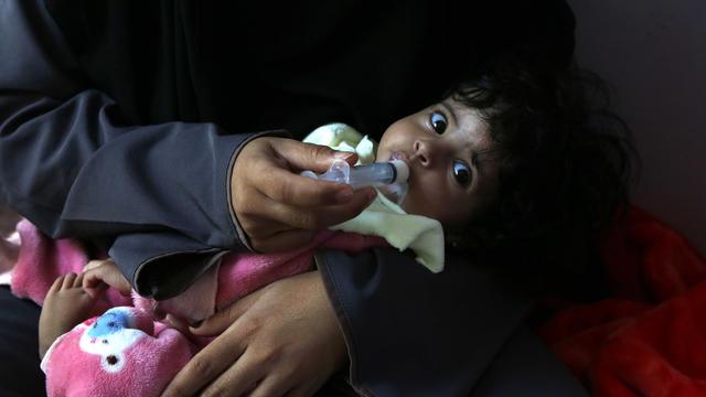 Malnutrition In Yemen 2021